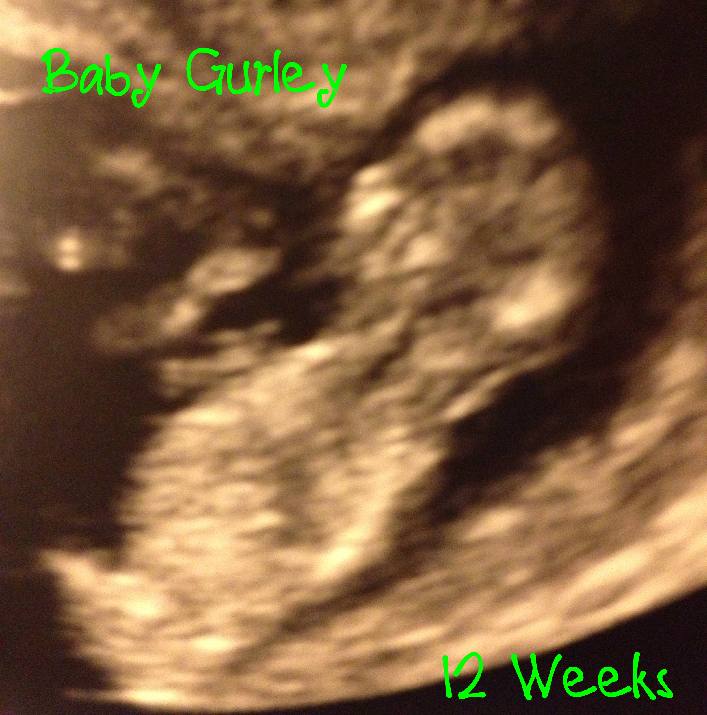 15 Weeks, 5 Days